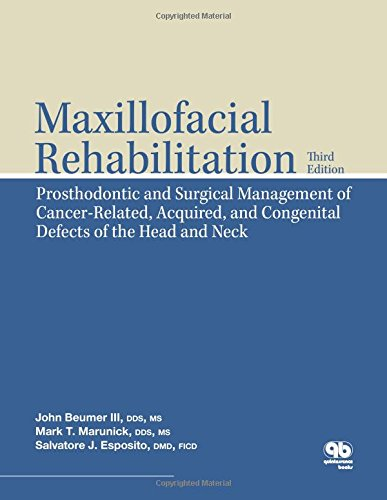 book Maxillofacial Rehabilitation: Prosthodontic and Surgical Management of Cancer-Related, Acquired, and Congenital Defects of the Head and Neck (Amg All Music Guide)