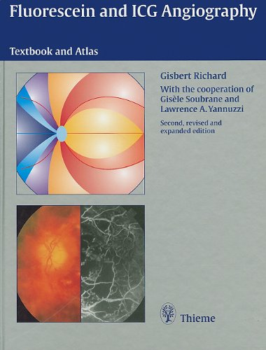 book Fluorescein and ICG Angiography: Textbook and Atlas